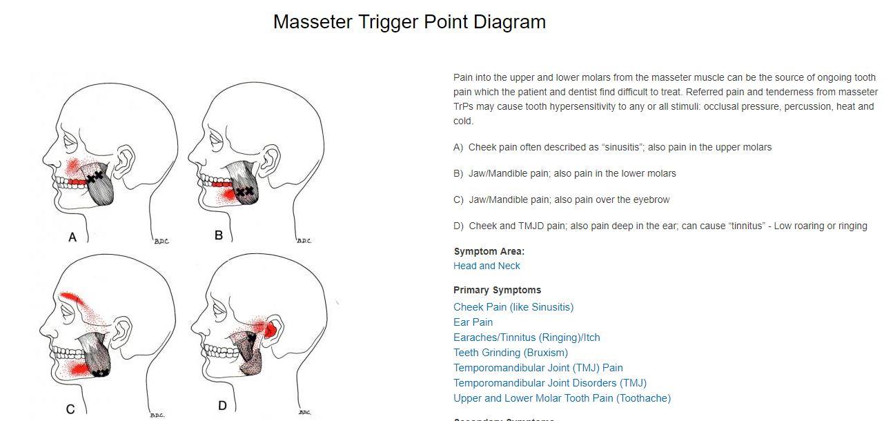 masseter trigger points
