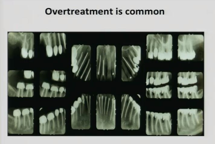 overtreatment is common root canals