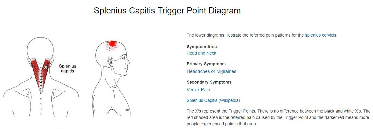 splenius capitis trigger point referral