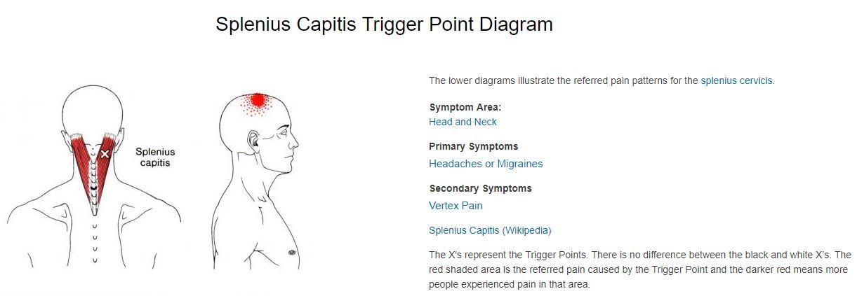 splenius capitis trigger point referral